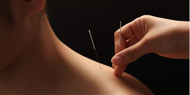 Acupuncture helps neck pain