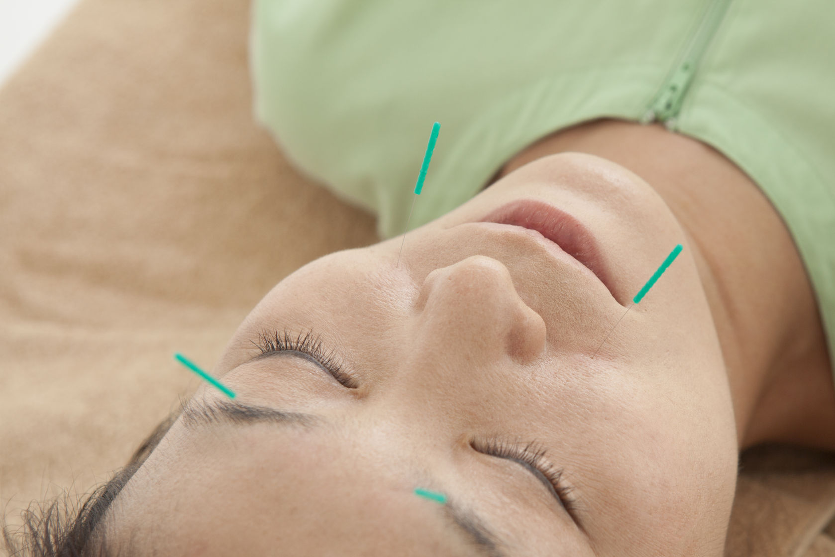acupuncture reduces wrinkles
