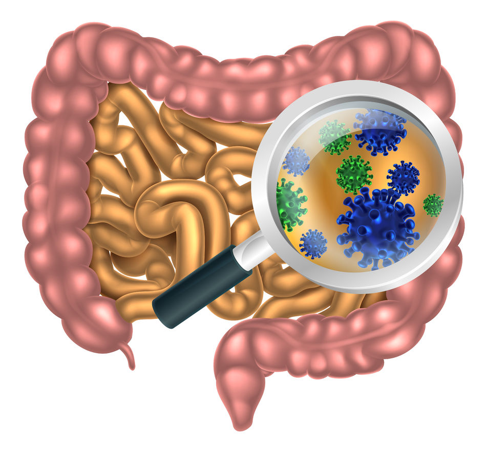 diet affects intestinal microbiome